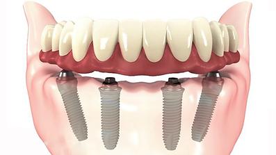 como é feito um implante dental?