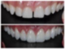 Como são feitas as lentes de contato dental?