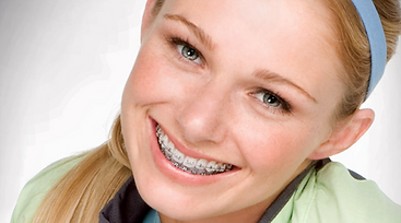aparelho ortodontico para todas as idades
