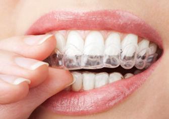 aparelho ortodontico invisível