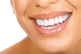 Quais os tipos de clareamento dental?