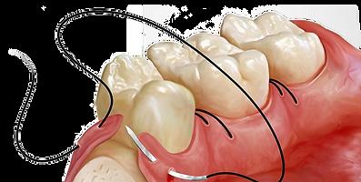 o que é um dente do siso?