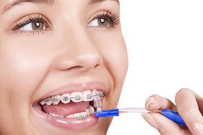 aparelho ortodontico para crianças