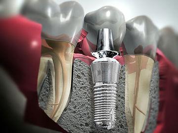 o que são implantes dentais?