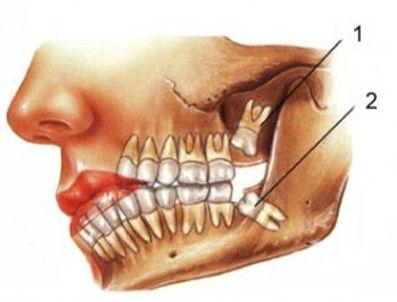 Dói para tirar o dente do siso?