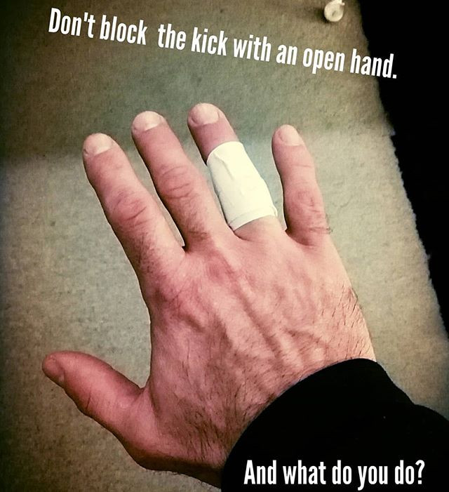 Broken finger after blocking a kick with an open hand