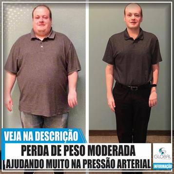 Perda de peso moderada ajuda muito na diminuição da pressão arterial!
