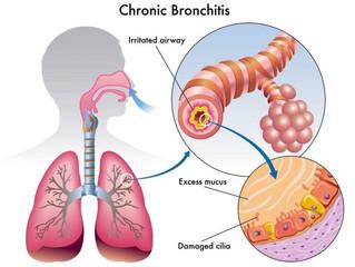 Inflammation, Immune and Bronchitis