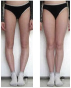 Malallieamento di ginocchio