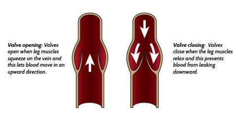 diagram of normal vein valve function