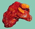 Aldosterone tumour