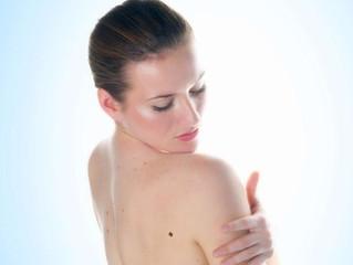 Como fazer um auto-exame da pele