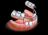 Dentiste Limoilou Prothèse Dentaire Partielle