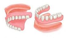 Dentiste Limoilou Prothèse Dentaire Complète