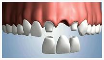 Dentiste Limoilou Pont Dentaire