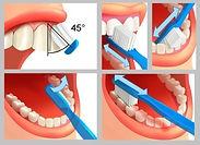 Dentiste Limoilou Brossage Dentaire