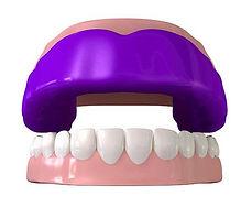 Dentiste Limoilou Protecteur Buccal