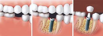 Dentiste Limoilou Implant