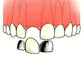 Dentiste Limoilou Pont Dentiste