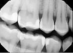 Dentiste Limoilou Radiographie Interproximale