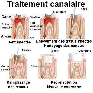 Dentiste Limoilou Traitement de canal