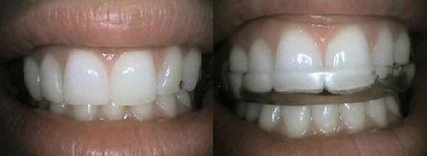 Dentiste Limoilou Plaque Occlusale