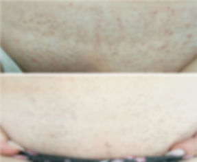 Laser hair removal on bikini area before an after, available at Allure Aesthetics Ltd in Abergavenny, South Wales