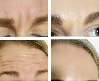 Botox injections before and after, available at Allure Aeshetics Ltd in Abergavenny, South Wales