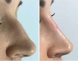 Non-Surgical rhinoplasty before and after, available at Allure Aesthetics Ltd in Abrgavenny, South Wales