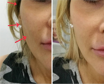 Cheek fillers before and after at Allure Aesthetics Ltd in Abergavenny, South Wales