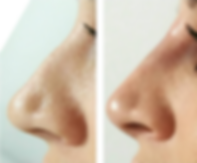 Non-Surgical rhinoplasty before and after, available at Allure Aesthetics Ltd in Abergavenny, South Wales