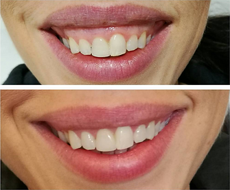 Botox injections for gummy smile, before and after, available at Allure Aeshetics Ltd in Abergavenny, South Wales