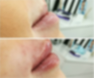 Lip fillers before and after at allure aesthetics ltd in Abergavenny, South Wales