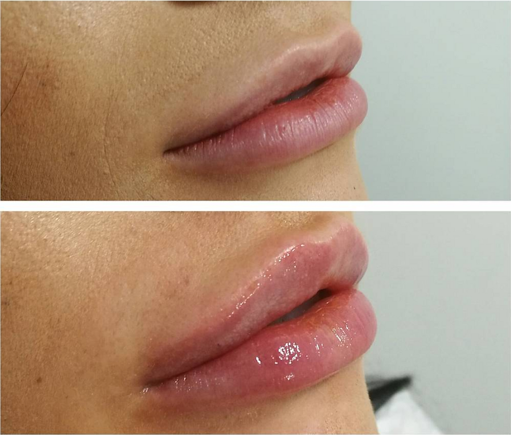 Lip fillers results, before and after