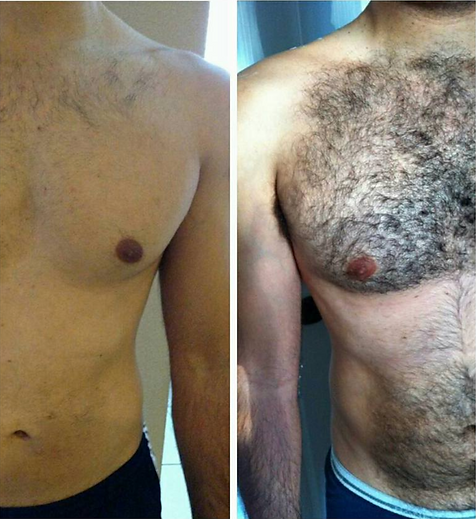 Laser hair removal on male chest before and after, available at Allure Aesthetics Ltd in Abergavenny, South Wales