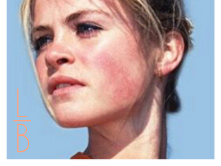ROSACEA - Triggers and Treatments
