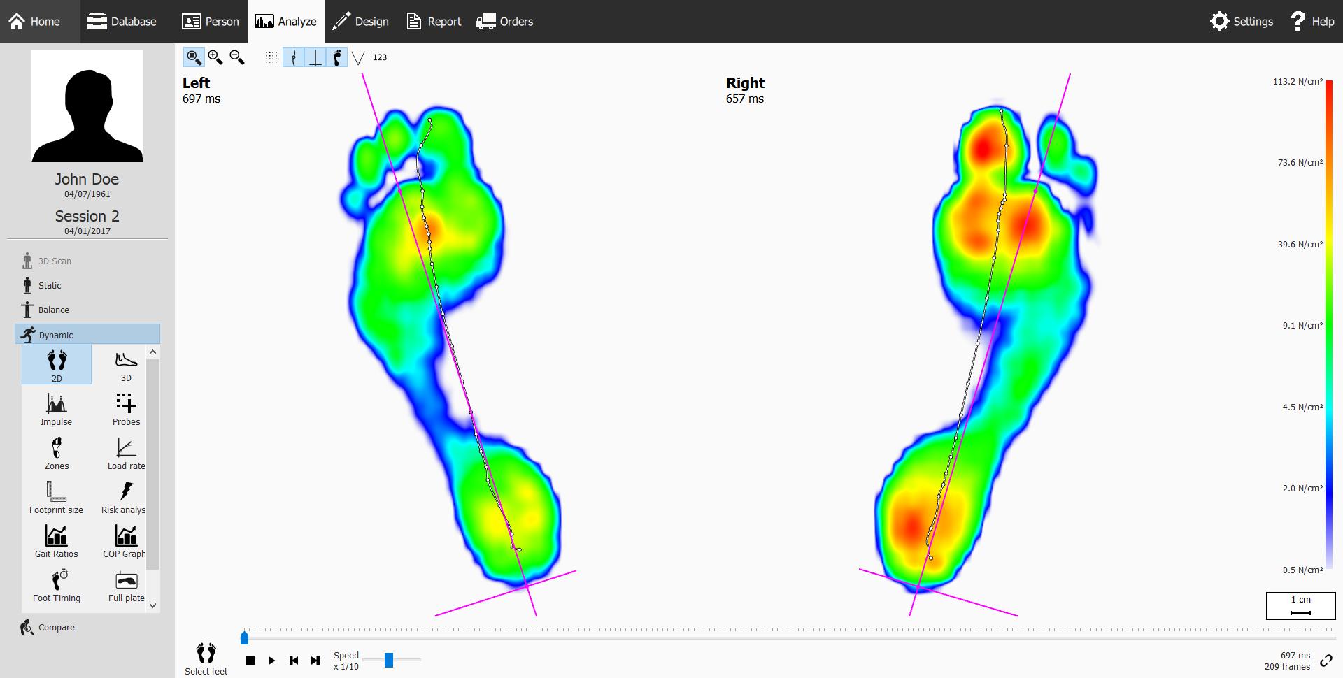 Biomechanics & Dynamic Gait Analysis