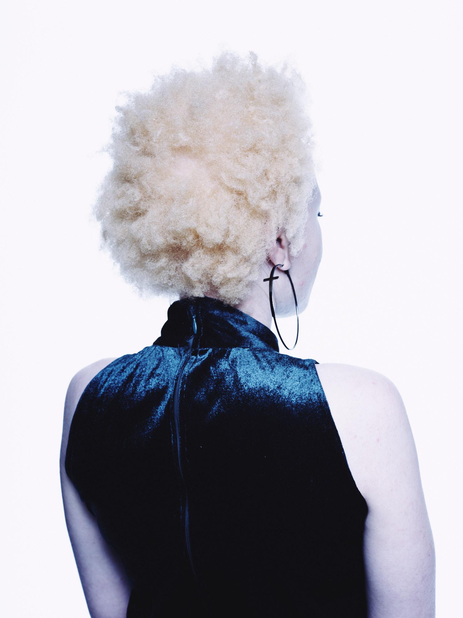 Khulisa_albinism_2018_12_04_Shot_01_0337