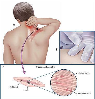 Motion Factors - Fysiotherapie | Dry Needling
