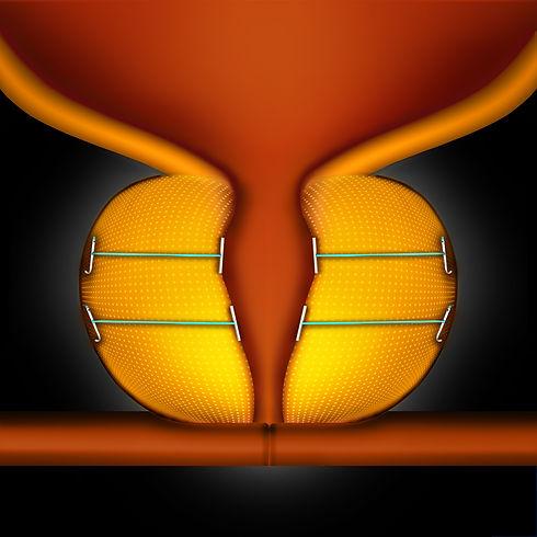 prostate-master-org-step-6.jpg