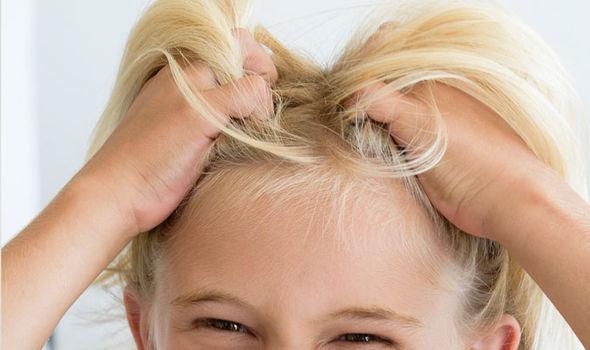 head-lice-2.jpg