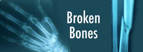 brokenbones1.jpg