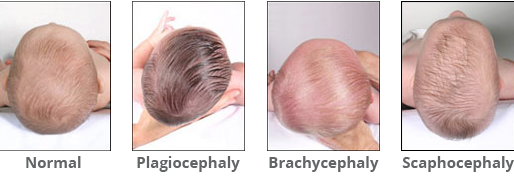 Plagiocephaly: What Is It and How Can I Prevent It?