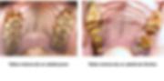 Diferencia entre las tablas molares de un caballo joven y un caballo viejo | Dentista equina M Duch