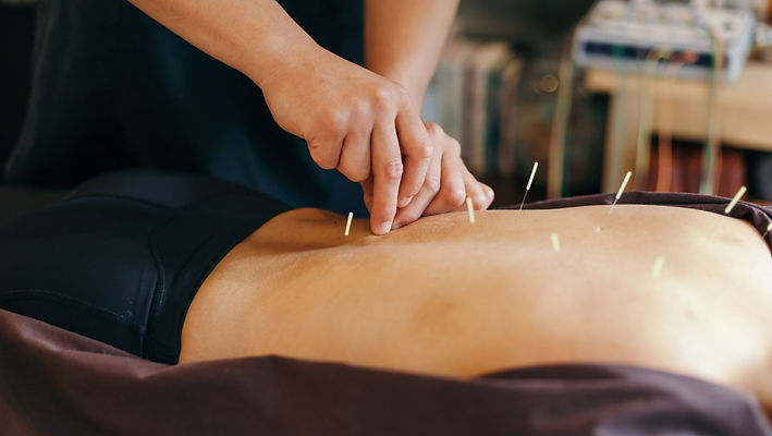 Photo of an acupuncturist needling a patient who is laying prone.