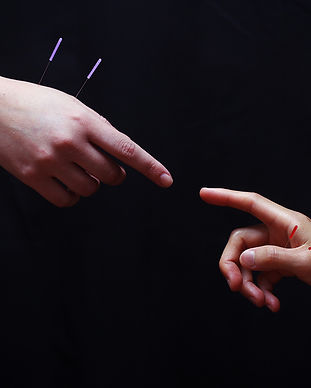 An image inspired by Michaelangelo, 2 hands with acupuncture needles inserted within inches of touch