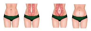 rozstęp mięśni prostych brzucha