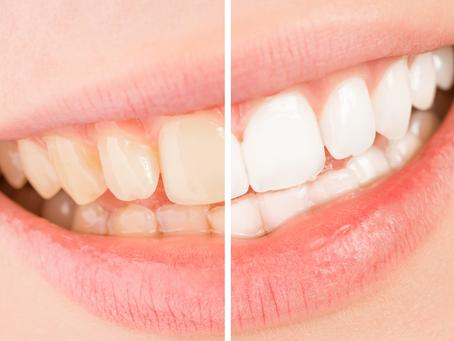 Tooth Whitening Myth Busting!