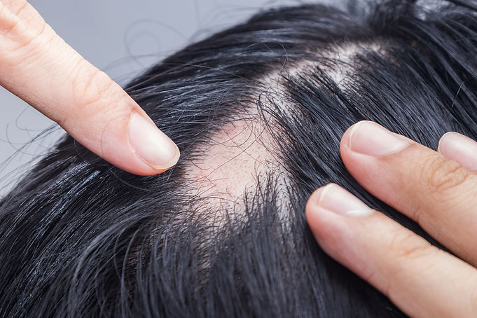 Alopecie Dr Butnaru