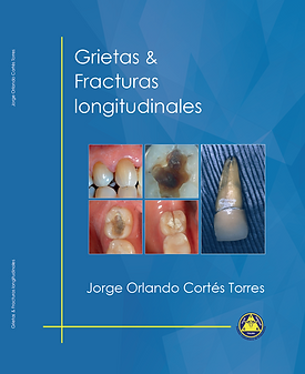 libro grietas y fracturas longitudinales, jorge orlando, instituto colombiano de endodoncia, comprar, compra online, pdf, descarga gratis
